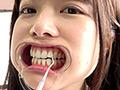 宮沢ちはるチャンのエッチな歯&舌ベロ&口内動画!!! 宮沢ちはる