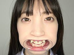 口腔:冬愛ことねの歯観察・口内・のどちんこ・舌ベロ観察!