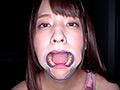 激カワ女優 あべみかこチャンの歯・のどちんこ観察! あべみかこ