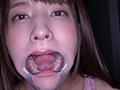 激カワ女優 あべみかこチャンの歯・のどちんこ観察!