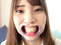 口腔:竹内夏希チャンの歯・口内観察&指フェラプレイ!
