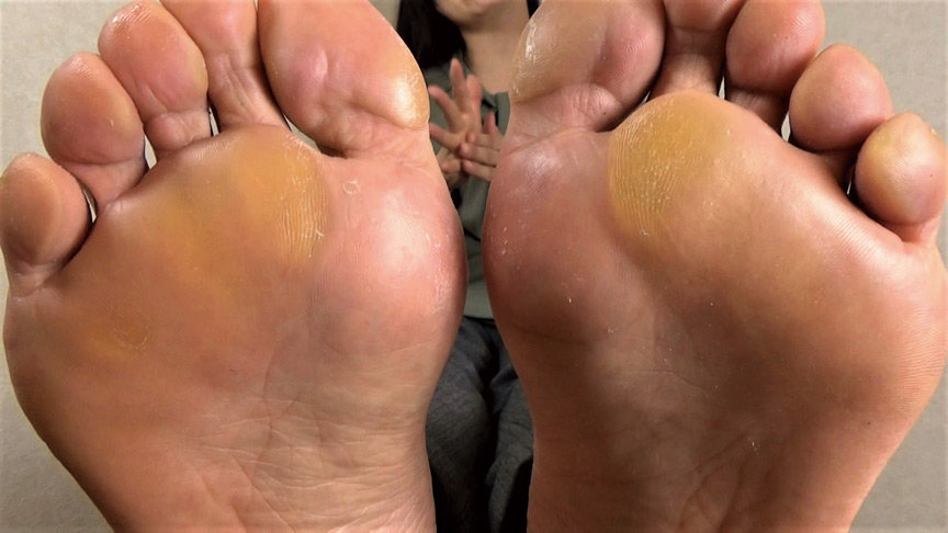 【足のにおい】 受付嬢・指股の固形汗