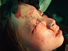 【エロ動画】流血瞼縫合のエロ画像