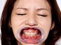 歯12 こずえまき