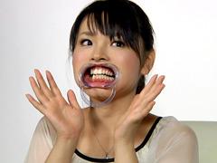 フェチ:歯14