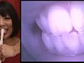 歯 16 6