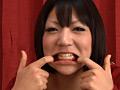 歯 16 10