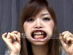 フェチ:歯18