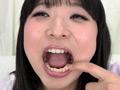 銀歯インレーフェチ 咲希の口内には銀歯がいっぱい!