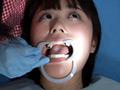 歯フェチシリーズ人気の処置室です!治療中なのにちょっと放置してしまったようです。神経を抜いて、仮埋めした前歯は危険信号。あちこち脱離も見えます。そして口内にキラキラ光る銀歯が数本これは興奮しますね!