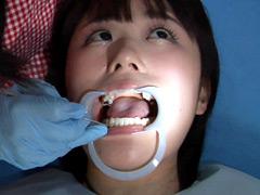 口腔:歯フェチ!処置室 つぐみちゃん 銀歯がキラリ