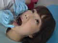 歯フェチ!処置室 ゆうこちゃん 銀歯がキラリ 1
