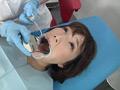 歯フェチ!処置室 ゆうこちゃん 銀歯がキラリ 3