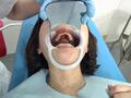 歯フェチ!処置室 ゆうこちゃん 銀歯がキラリ 5