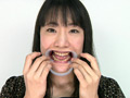 歯フェチ!レア美熟女の銀歯観察 優奈 サンプル画像0002