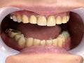 歯フェチ!レア美熟女の銀歯観察 優奈 サンプル画像0003
