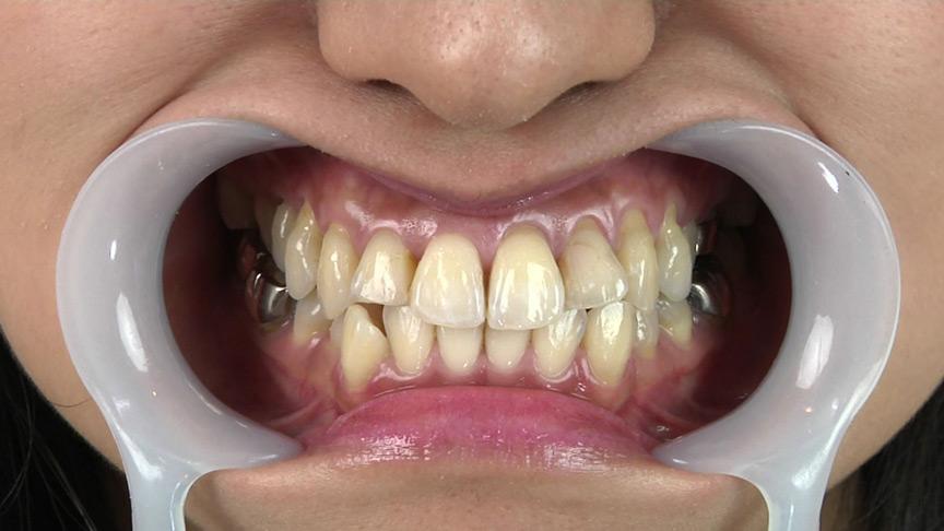 銀歯フェチ歯観察 由香里さんの口内
