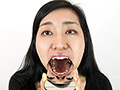 銀歯フェチ歯観察 由香里さんの口内 酒井由香里