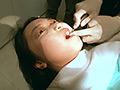 歯フェチ!本物の歯治療映像【抜歯】 ミランダ ミランダ