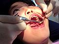 歯フェチ!本物歯治療映像虫歯掘削処置 堀越まき
