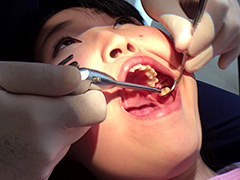 口腔:歯フェチ!本物歯治療映像虫歯掘削処置 堀越まき