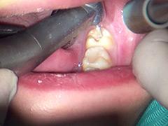 口腔:本物歯科治療映像 左下6,7番銀歯治療 星野桃子
