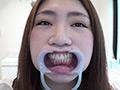 歯フェチ!本物歯科治療映像 親知らず抜歯 芹沢かえで