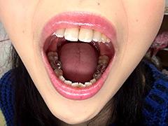 口腔:歯フェチ!相互口内観察レズ銀歯あり!