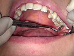 口腔:歯フェチ!本物歯科治療映像 井野紅葉