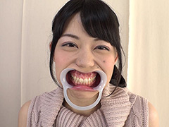 口腔:歯フェチ!銀歯観察 桜庭うれあ