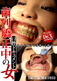 【美紀動画】口腔ドキュメント-歯列矯正中の女-美紀・21歳-フェチ