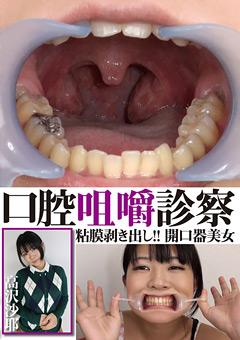 口腔咀嚼診察 粘膜剥き出し!!開口器美女 高沢沙耶