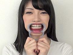 フェチ:フェチ選!! 口腔歯科淫診