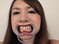 フェチ選!! 口腔歯科淫診 10