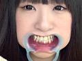 フェチ選!! 口腔歯科淫診 12