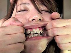フェチ:素人歯列矯正 顔面デストロイ 矯正中のリョウコちゃん
