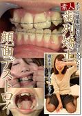 素人歯列矯正 顔面デストロイ 矯正中のリョウコちゃん