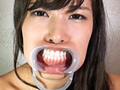 変態無免許医師によるAV女優専門のセクハラまみれ歯科医院がオープンしました。開口器をつけて口腔おっぴろげ状態になった女の子のお口の中をひたすら視姦するだけのまさにヤブ診療です。もちろん医療行為は一切行っておりません。貴方のお気に入りの口腔をぜひ見つけてください!
