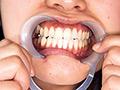 今回出演してくれた『桐谷美羽』ちゃんのお口の中のチャームポイントは、銀歯と親知らずです。特に親知らずは本人曰く「歯医者さんにやっかいな生え方してるから大手術になるかも…って言われたんです」という代物。大手術を想像してプルプル震える桐谷美和ちゃんがなんとも可愛らしいです。そして今回は咀嚼、接吻、そしてアナル舐めフェラという舐め噛み奉仕三昧のプレイを楽しみました。美女のお口の中に鎮座する銀歯と親知らずを視姦したい、舐め奉仕されたい、そんな歯フェチ舌フェチの貴方だけにオススメです。