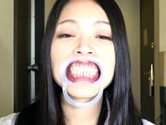 口腔:銀歯vs虫歯を発見!ダブル口腔淫診ショー