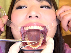 新口腔内観察 – 川越ゆい by 口腔仙人(Dr. X)