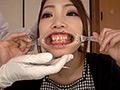 4K新口腔内観察 ☆えりあちゃん☆【全編】 ERIA