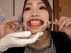 口腔:4K新口腔内観察 ☆えりあちゃん☆【全編】