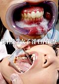 歯科衛生女子 淫 口内観察
