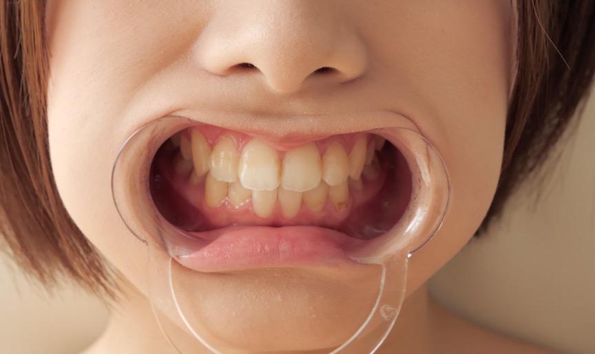 星咲凛チャンのとっても貴重な歯・舌ベロフェチ動画! 画像 6