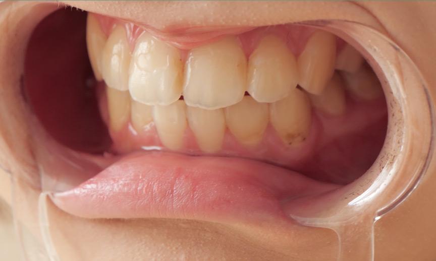 星咲凛チャンのとっても貴重な歯・舌ベロフェチ動画! 画像 8