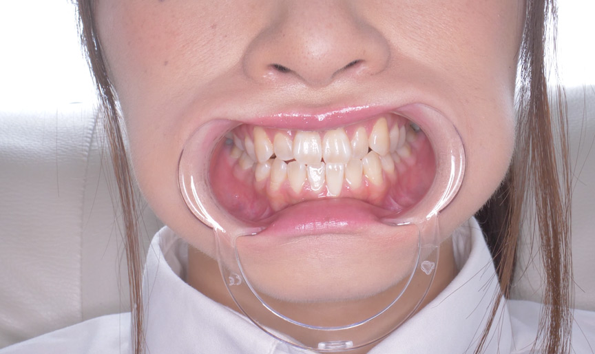桐山結羽ちゃんのとっても貴重な歯・口内・舌フェチ動画 画像 4