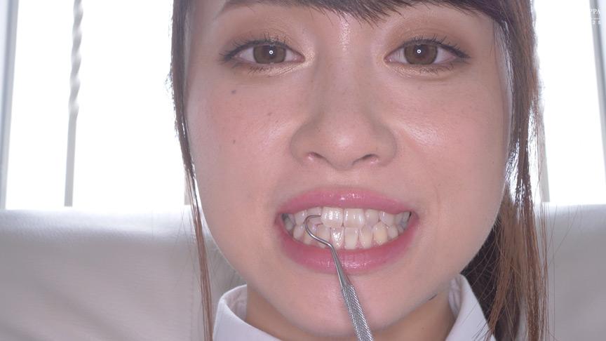 桐山結羽ちゃんのとっても貴重な歯・口内・舌フェチ動画 画像 18