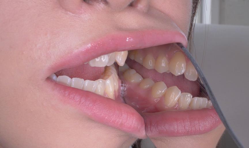 桐山結羽ちゃんのとっても貴重な歯・口内・舌フェチ動画 画像 24