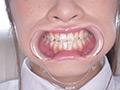 桐山結羽ちゃんのとっても貴重な歯・口内・舌フェチ動画のサムネイルエロ画像No.4